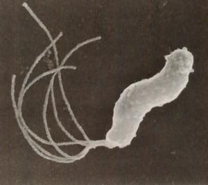 井戸水の中にあるピロリ菌